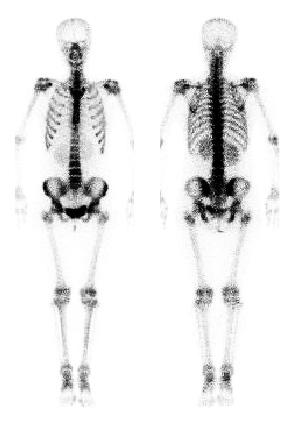 اسکن استخوان